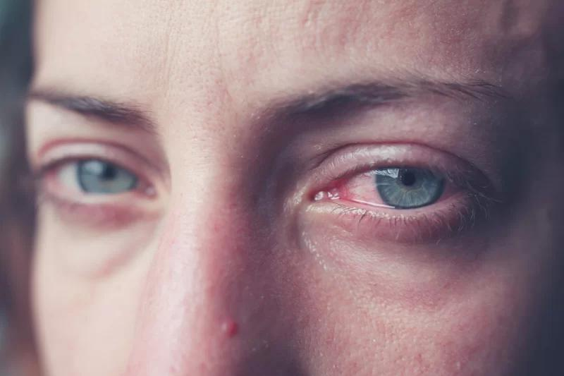 Слезотечение одного глаза причины и лечение