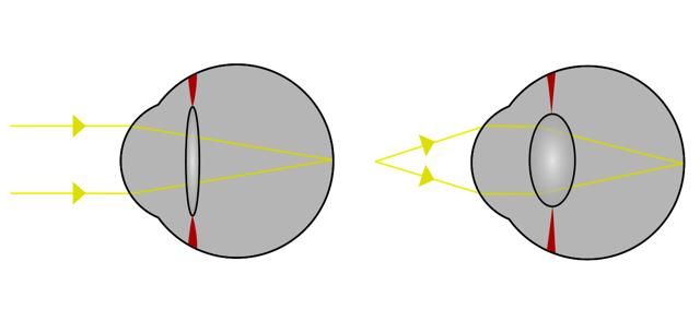 Когда один глаз видит лучше, чем другой: что такое анизометропия и насколько она опасна?