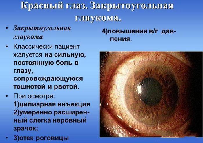 Какие существуют противопоказания при глаукоме
