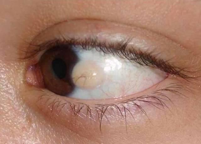 Киста конъюнктивы глаза: ретенционная, дермоидная, лечение и капли