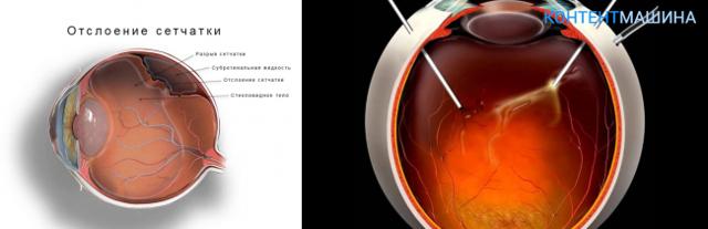 Витрэктомия (витреоэктомия) глаза