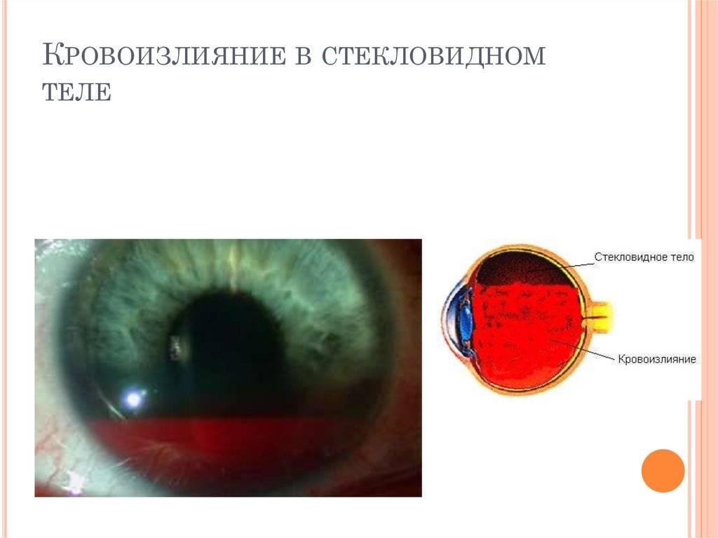 Гемофтальм (кровоизлияние в глаз)