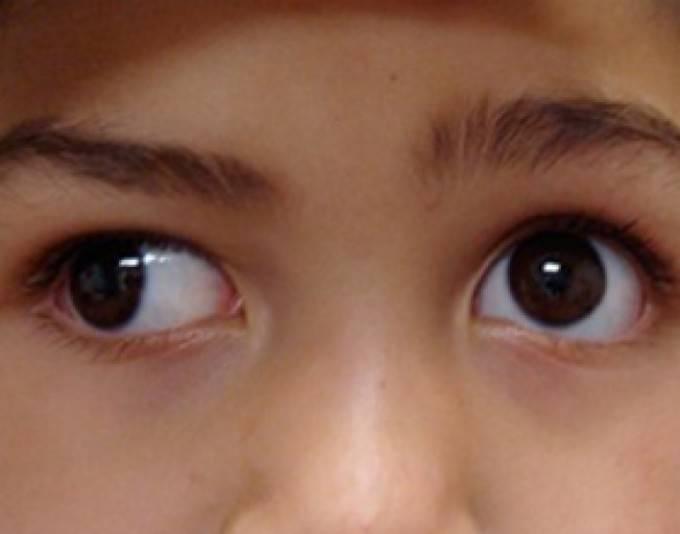 Как проявляется альтернирующее косоглазие? — глаза эксперт