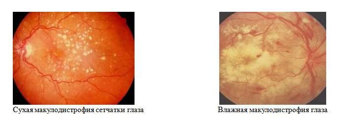 Макулодистрофия сетчатки глаза: симптомы, диагностика, лечение — глаза эксперт