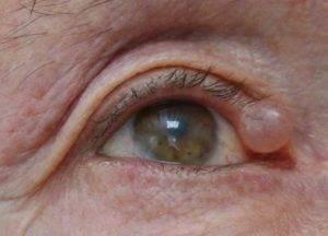 Киста верхнего века: симптомы и виды лечений