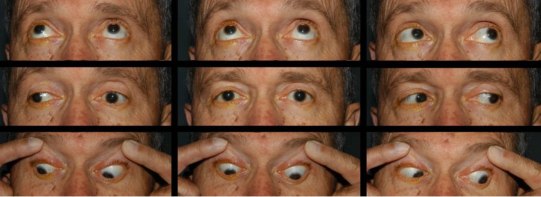 Офтальмоплегия (офтальмопарез) | компетентно о здоровье на ilive