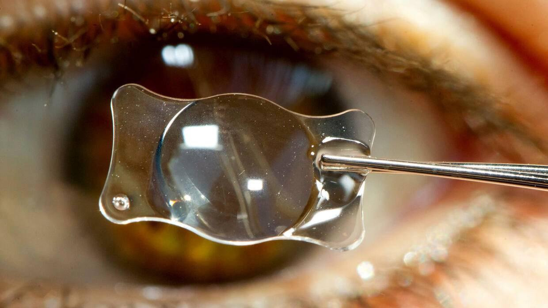 Мультифокальные иол (интраокулярные линзы) при катаракте - обзор моделей, отзывы и цены