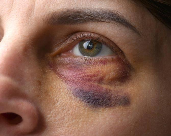 Как быстро убрать синяк на лице после удара и снять отек
