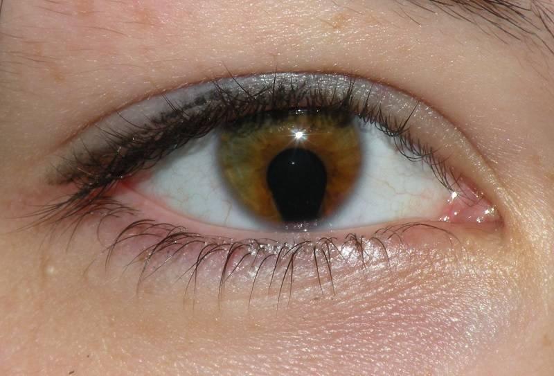Врождённая колобома радужки глаза и его сосудистой оболочки, а также зрительного нерва, сетчатки и хрусталика