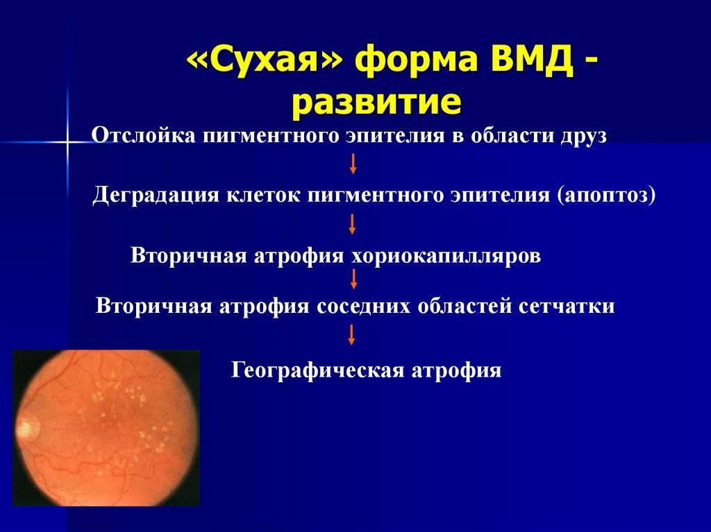Какое лечение сухой формы возрастной макулодистрофии сетчатки наиболее эффективно?