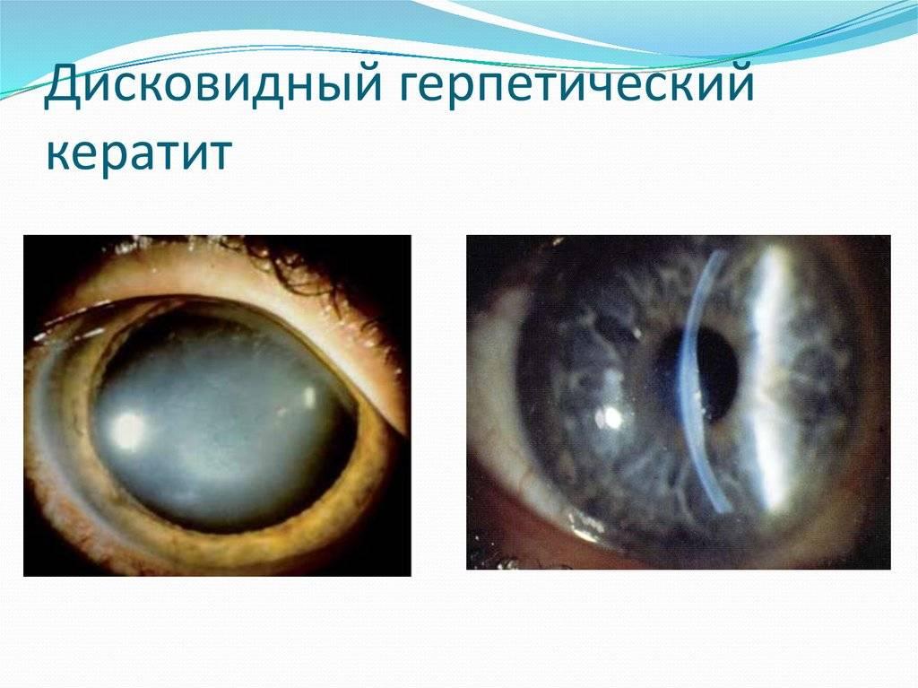 Герпетический кератит: лечение, фото