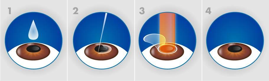 Прямое сравнение методов лазерной коррекции миопии или за что вы платите при выборе relex smile