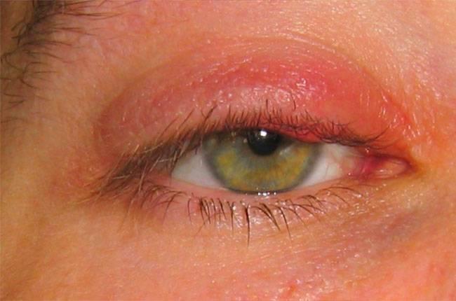 Покраснение вокруг глаз - фото, причины появления и лечение