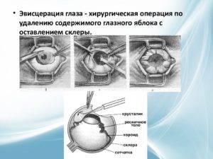 Энуклеация глазного яблока | компетентно о здоровье на ilive