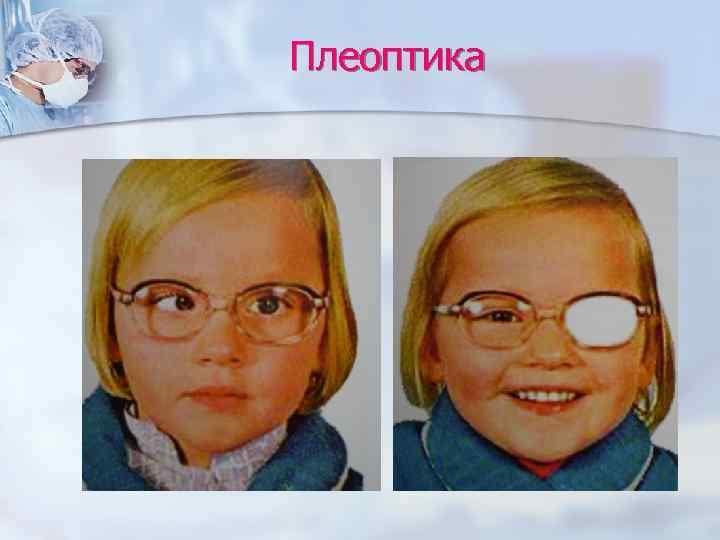 Методические указания студентам по теме практического занятия: бинокулярное зрение патология глазодвигательного аппарата | авторская платформа pandia.ru