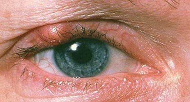 Ячмень на глазу: лечение, признаки, причины появления