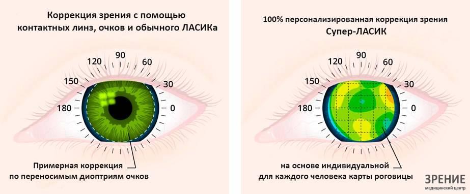 Можно ли делать лазерную коррекцию зрения нерожавшим — разбор мифов и реальности