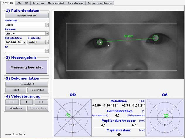 Для чего измеряют межцентровое расстояние? как измерить межзрачковое расстояние: способы и инструкции