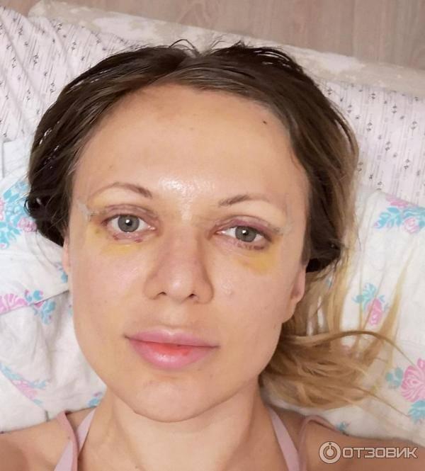 Вторая молодость глаз — блефаропластика верхних век, фото до и после