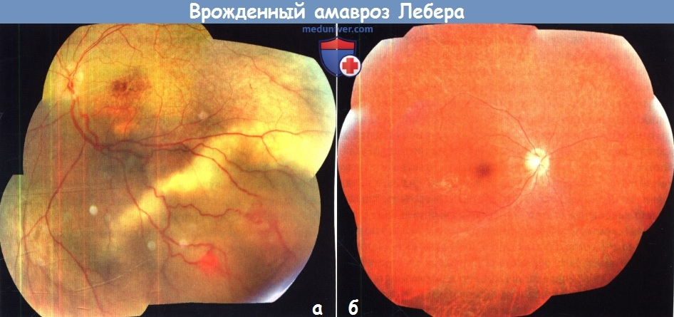 Амавроз: причины, симптомы, лечение | амавроз лебера