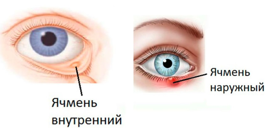 Что делать, если вскочил ячмень на глазу и как его убрать