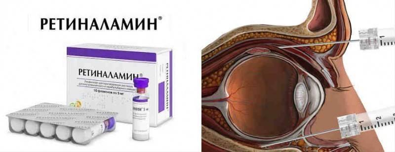 Какими каплями заменить ретиналамин