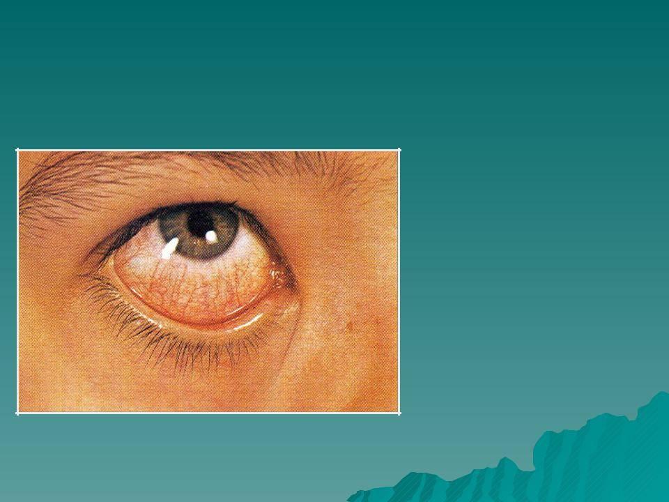 Покраснение слизистой глаза (гиперемия конъюнктивы)