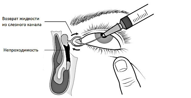Дакриоцистит у новорожденных (детей): лечение, симптомы (фото), причины непроходимости слезного канала, массаж