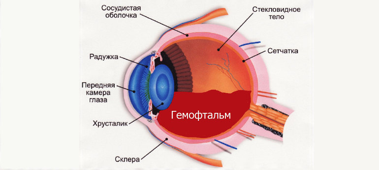 Гемофтальм