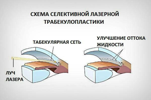 Лазерная трабекулопластика - операция при глаукоме
