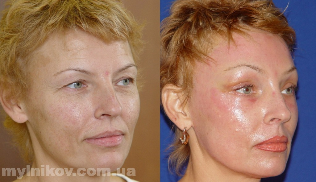 Восстановление по дням после блефаропластики с фото