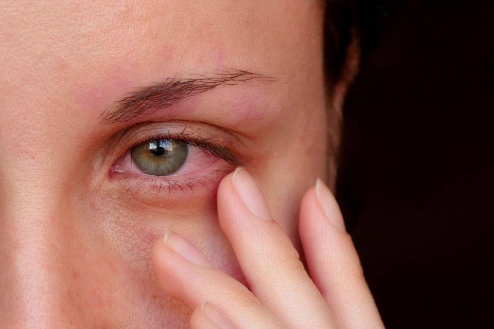 Глазное яблоко болит при надавливании: причины, лечение oculistic.ru глазное яблоко болит при надавливании: причины, лечение