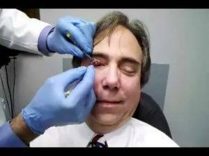 Удаление халязиона: показания, ход операции и реабилитация