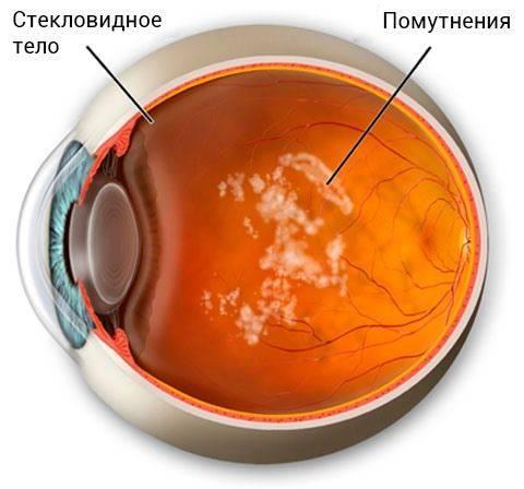 Деструкция стекловидного тела: симптомы, причины, диагностика