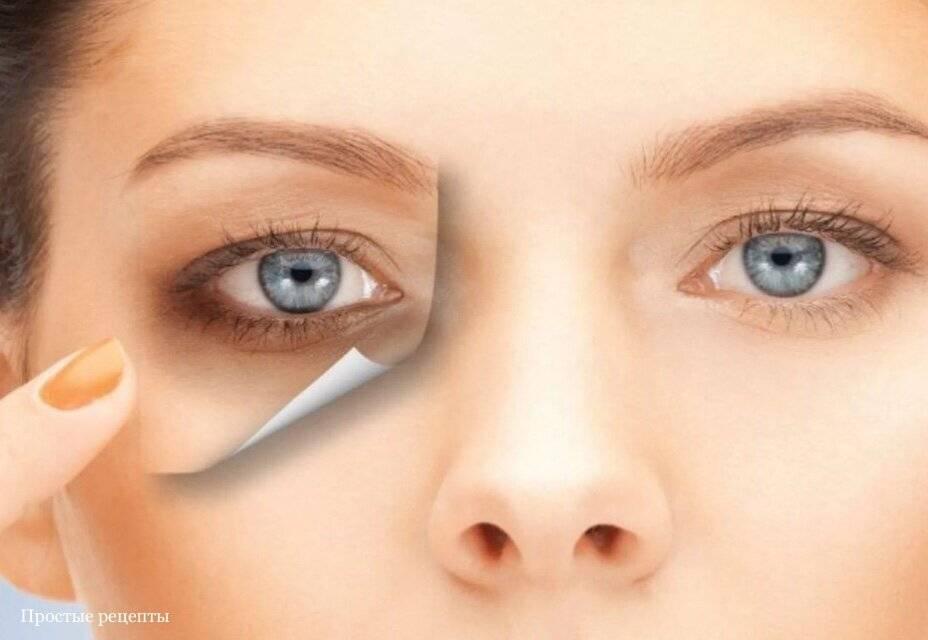 Круги под глазами – причины болезни у женщин, как избавиться при появлении