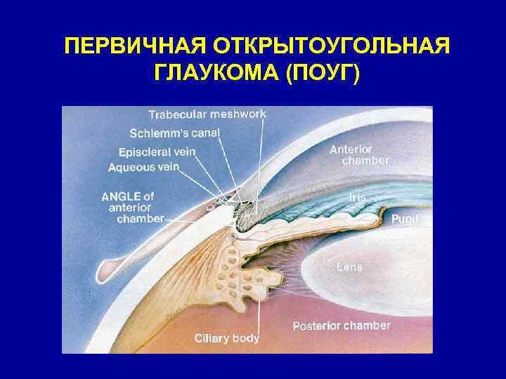 Как глаукома опаснее закрытоугольная или открытоугольная - вылечимглаукому