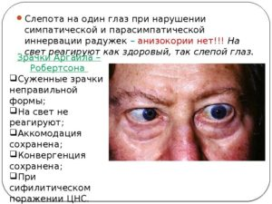 Кратковременное ухудшение зрения причины