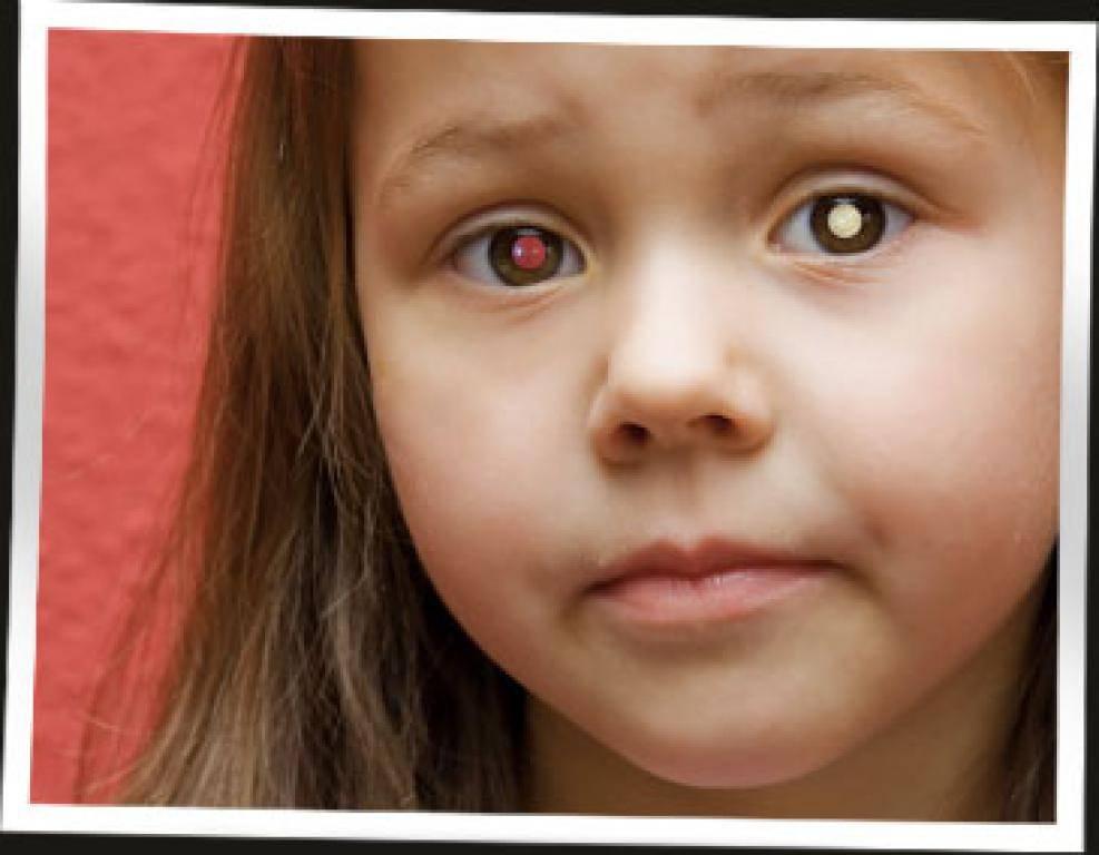 Ретинобластома у детей: симптомы, лечение, причины, признаки