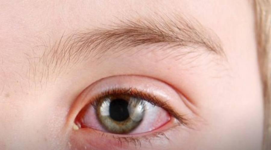 У ребенка насморк и гноятся глаза – что делать?