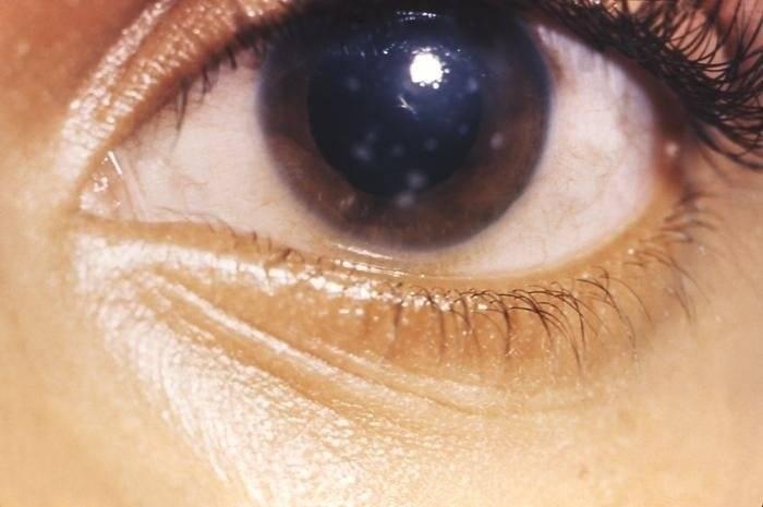 Бельмо на глазу: это что такое - значение у человека - причины на роговице