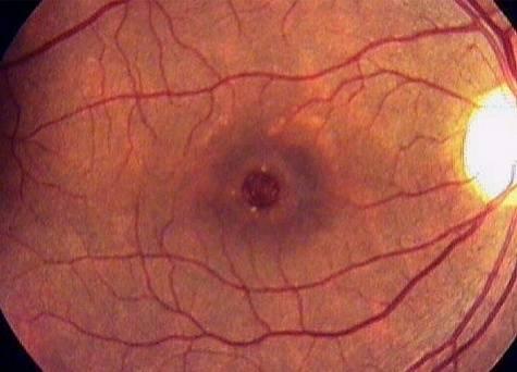 Эпиретинальный фиброз сетчатки. клиники. консультация офтальмолога.