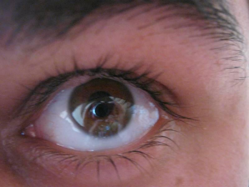 Пузырек на белке глаза