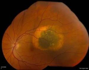 Невус хориоидеи глаза: симптомы и лечение