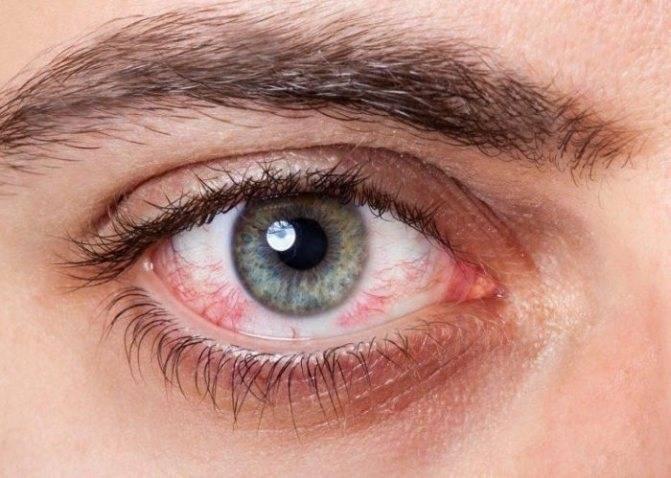 Покраснение глаз - причины и лечение у детей и взрослых
