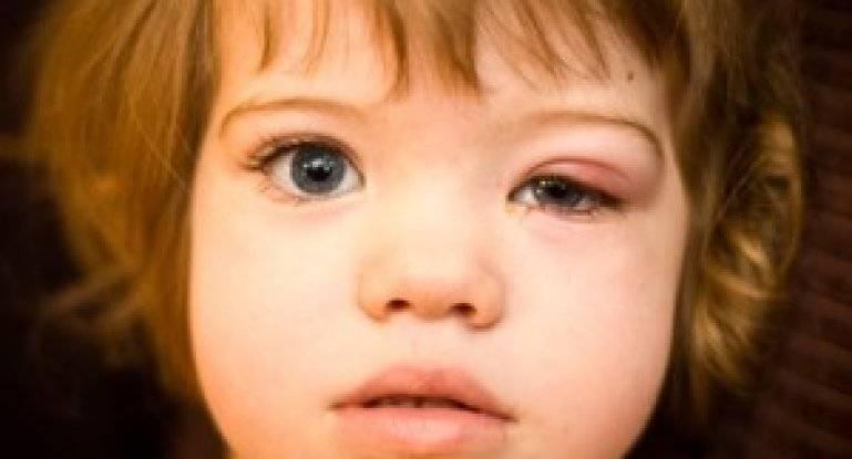 Лечение ячменя на глазу у ребёнка дома