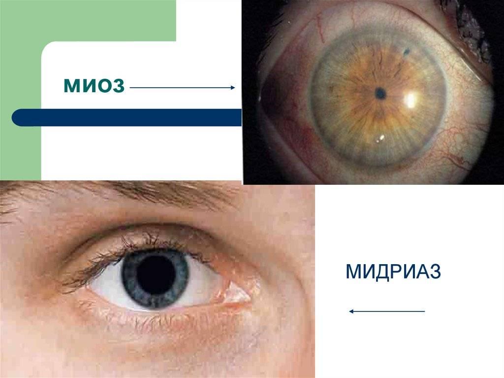 Мидриаз зрачка — классификация, лечение