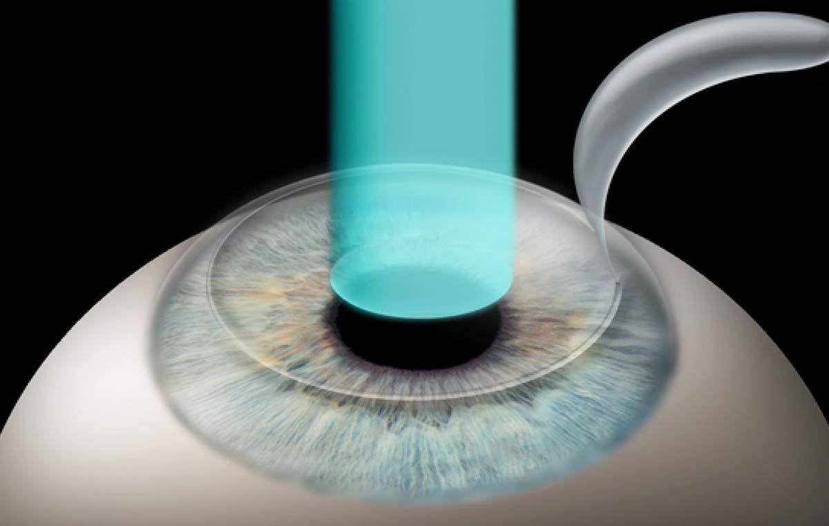 Фемто супер ласик лазерная коррекция зрения - описание операции, последствия