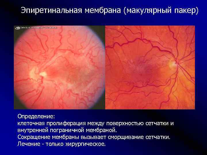 Фиброз стекловидного тела (сетчатки) глаза