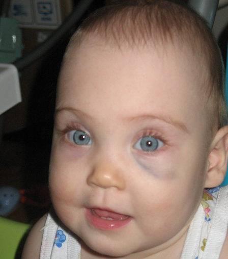 У ребенка 7 месяцев синяки под глазами | медик03