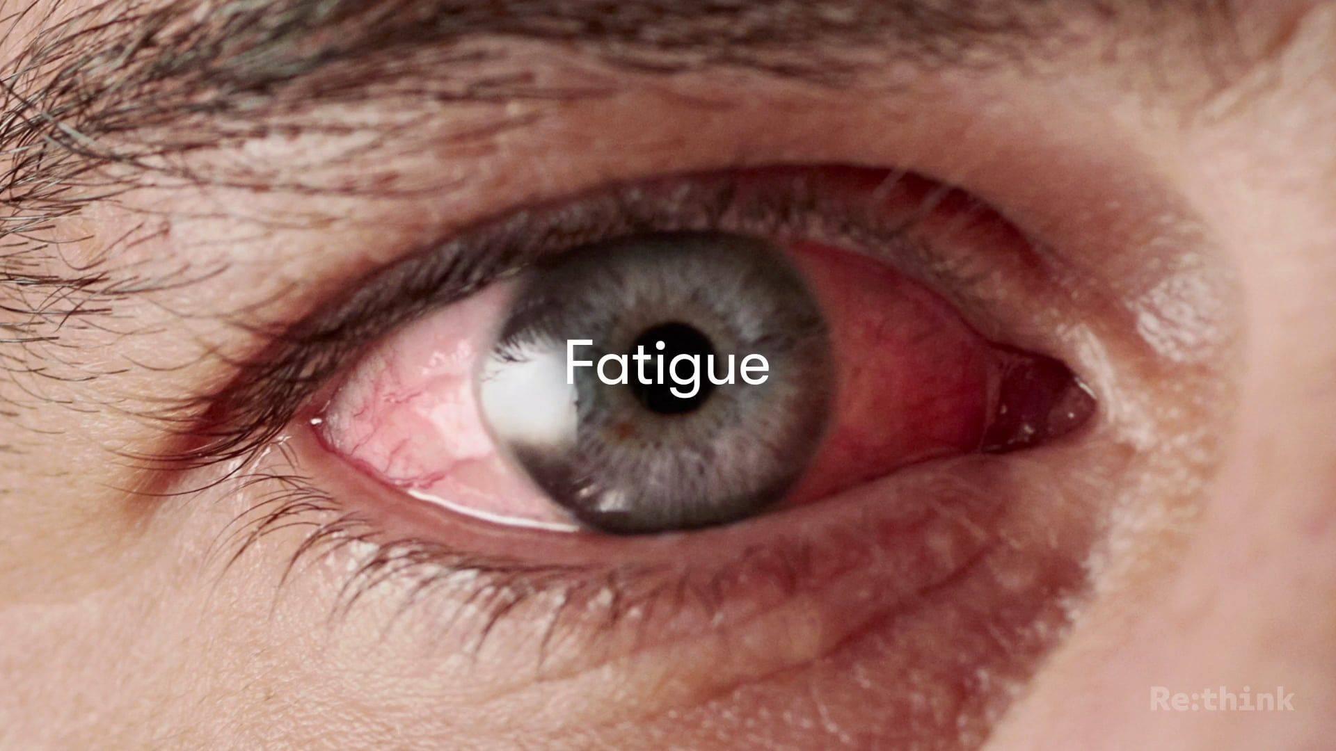 Болят глаза от сварки: что делать в домашних условиях